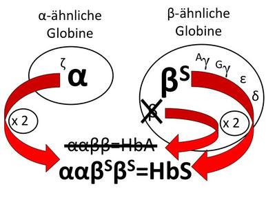 Abb. 4: Hämoglobin-Produktion bei einem Patienten mit einer Sichelzellkrankheit vom Subtyp einer Sichelzell-β(0)-Thalassämie