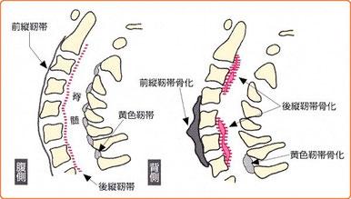 後縦靭帯骨化症,前縦靭帯骨化症,黄色靭帯骨化症