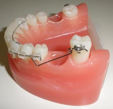 成人の矯正治療、大臼歯のアップライト