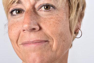foto aging invecchiamento cutaneo macchie rughe raggi uv