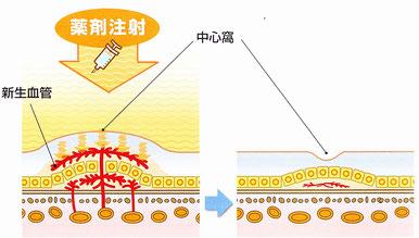 加齢黄斑変性症の治療法。抗VGEF療法(ルセンティス)