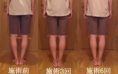 O脚矯正 before after (ビフォーアフター)