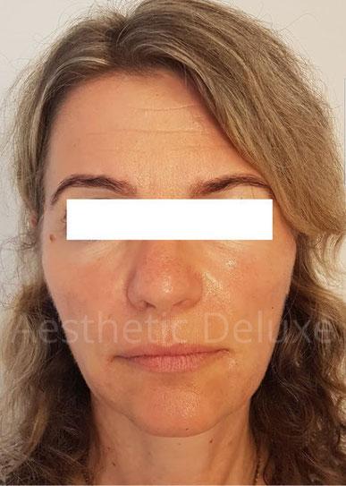 Faltenunterspritzung und Wangenvolumenaufbau mit Hyaluron | Unterspritzung Nasolabialfalte