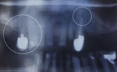 Unvollständige Wurzelfüllung (links) und Entzündung an der Wurzelspitze trotz Wurzelfüllung (rechts). Was kann man tun?