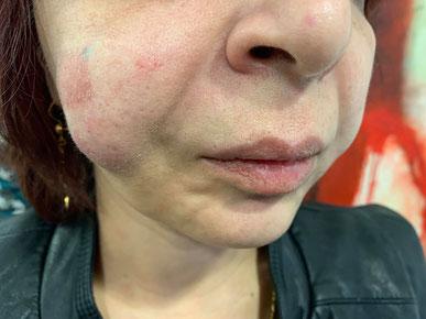 Kann bei nicht fachgerechter Behandlung passieren: Probleme von der Erblindung bis zum Verlust der Nase, Lippe oder anderer Gesichtsregionen können eintreten. (Foto: Hoffmann)