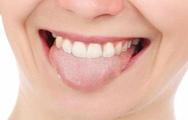belegte Zunge