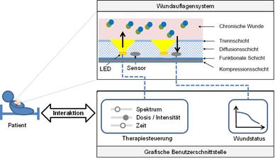 Abb.1: Konzept LEDSensTex– sensorbasierte intelligente Wundauflage mit integrierter Therapiesteuerung mittels LED-Licht in Abhängigkeit des Wundheilungsverlaufs (Grafik: RWTH Aachen)