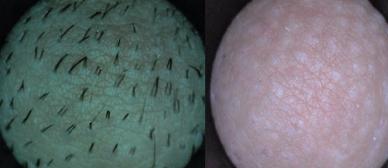 skinplace Mikroskopaufnahme dauerhafte Haarentfernung