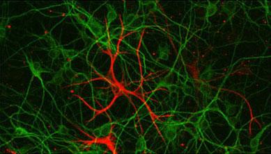 神経生物学で動物危機管理に貢献する