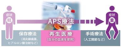 再生医療 最新治療 PRP療法 APS療法 名戸ヶ谷病院 整形外科 人工関節 関節治療センター 切らずに治す 千葉県 柏市