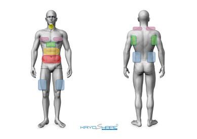 Behandlungszonen bei Mann