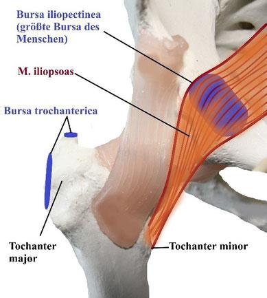 bursitis iliopsoas behandlung