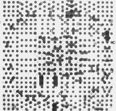 X線検査結果