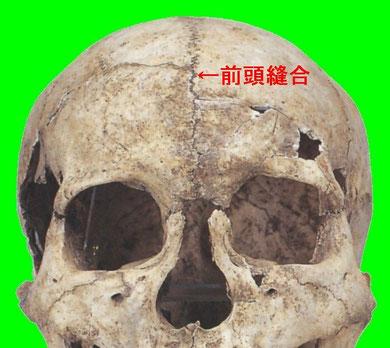 前頭縫合:縄文時代人骨