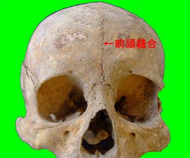 前頭縫合:江戸時代人骨