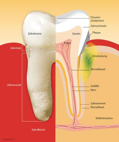 Eine unbehandelte Parodontitis kann zu Zahnverlust führen.