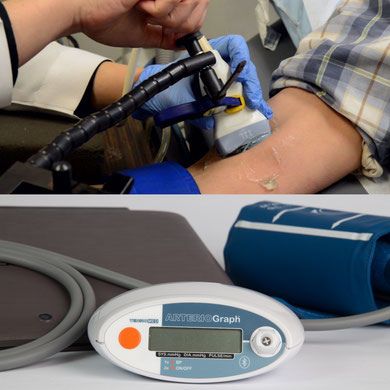 Flow Mediated Dilation (FMD) or Arteriograph?