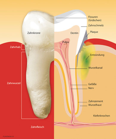 Eine unbehandelte Parodontose kann zu Zahnverlust führen.