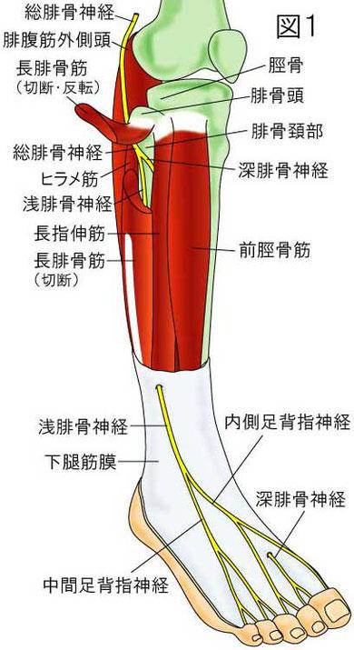 腓骨神経 絞扼部位