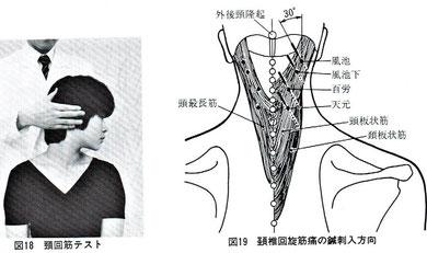 木下晴都:回旋時の痛みは頚椎外方30度で刺鍼。