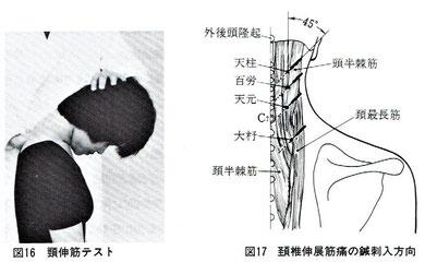 木下晴都:伸展時の痛みは頚椎内方45度で刺鍼。