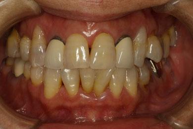 歯の変色や穴