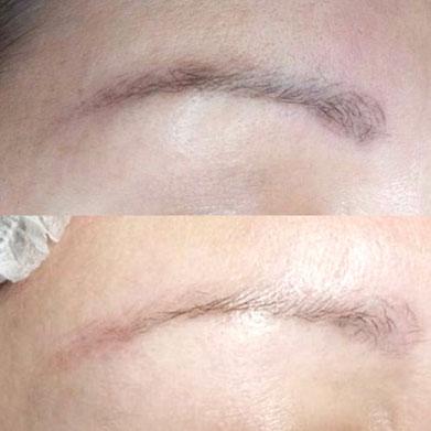 Permanent Make Up Korrekturen, Entfernung, Aufhellung bei Pigmenta Skin