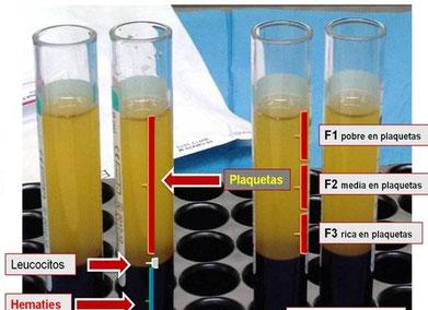 Técnica de plasma rico en plaquetas