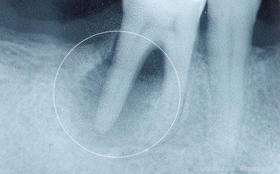 Entzündung an der Wurzel eines abgestorbenen Zahnes im Röntgenbild