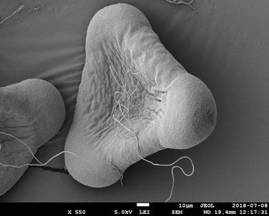 Gemeine Nachtkerzen (Oenothera biennis)  Pollen unter dem Rasterelektronenmikroskop. KROHNE