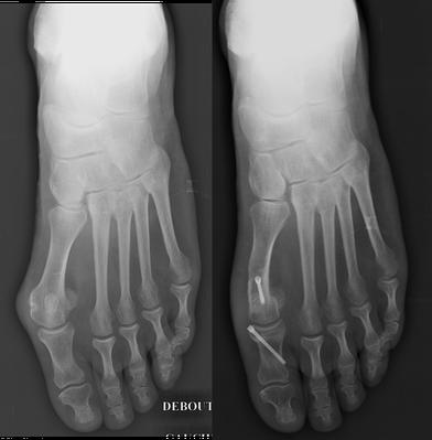 hallux valgus cirugía chevron Akin tornillos Toulouse dr Rémi chirurgie orthopédique La Croix du Sud
