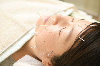 美容鍼・美顔鍼でお肌の新陳代謝をアップ
