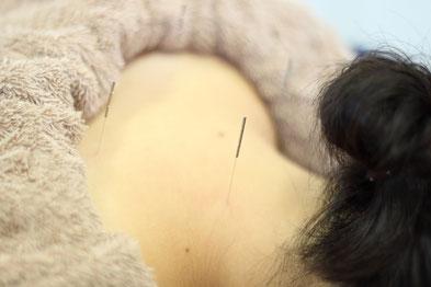 女性鍼灸で美肌と体質改善