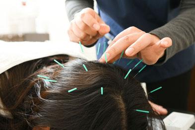 当院オリジナル育毛薄毛鍼灸治療コース