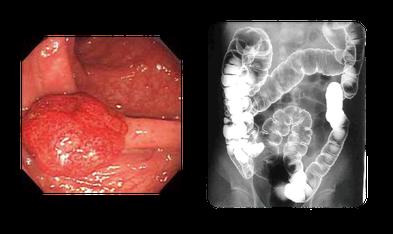 従来の内視鏡検査および注腸X線検査による画像