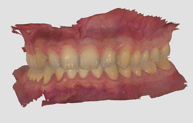 Zahnscann