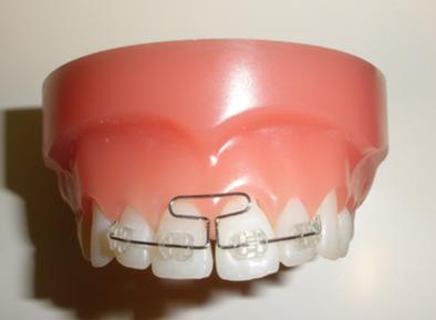 成長期に行う矯正治療、正中離開・側切歯の反対被蓋の改善