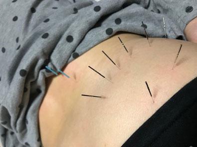 小牧 鍼灸 腰痛 慢性 自律神経