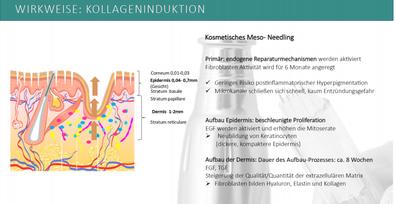 Microneedling, Hautverbesserung, Straffung, Glättung
