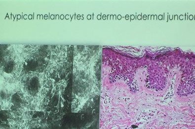 Atypische Melanozyten an der Dermoepidermalen Junktionszone im KLSM Horizontalschnitt verglichen mit dem histologischen Vertikalschnitt in der Melanomdiagnostik (Quelle: Vortrag Caterina Longo, Italien)
