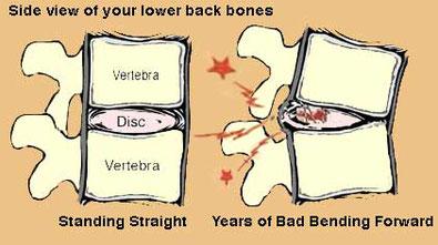 椎間板ヘルニアをはじめとした椎間板の問題が腰痛の原因になることがあります