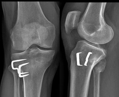 OtV, chirurgie orthopédique Toulouse Dr Rémi, arthrose genou interne
