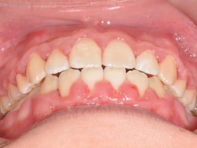 begradigte Frontzähne