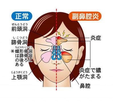 慢性 副 鼻腔 炎