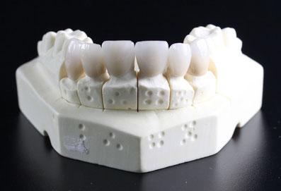 Hochwertiger Zahnersatz der Oralchirurgie Leipzig Lindenau