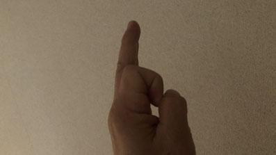 【バネ指】釣りのやり過ぎ、シャクリ過ぎで腱鞘炎に