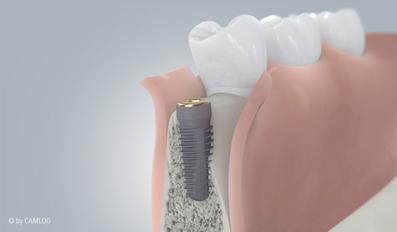 Zahnimplantat mit künstlicher Zahnwurzel, Verbindungsstück, Zahnkrone - bei Ihrem Zahnarzt Dr. Koravi in Essen