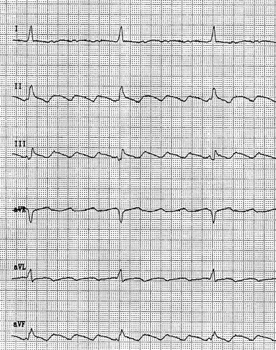 EKG Vorhofflattern Unter Flecainid