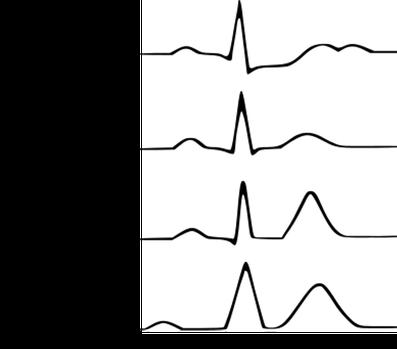 EKG Kalium