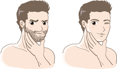 ヒゲ脱毛 髭脱毛 顔脱毛